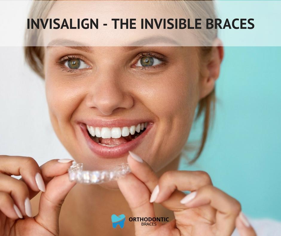Invisalign – the invisible braces