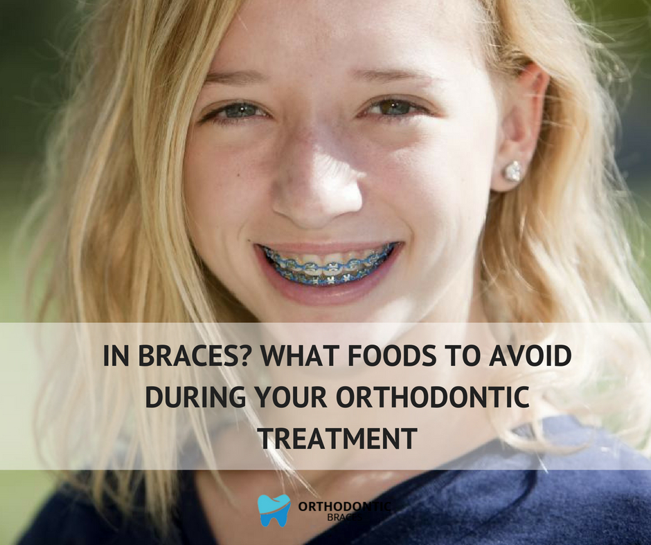 In Braces? What Foods to Avoid During Your Orthodontic Treatment