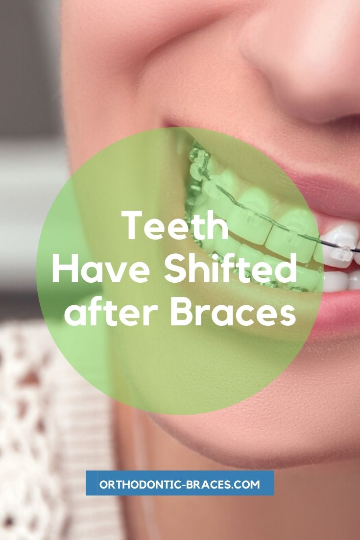 Teeth Have Shifted after Braces What to do